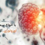انواع بیماری های اورولوژی