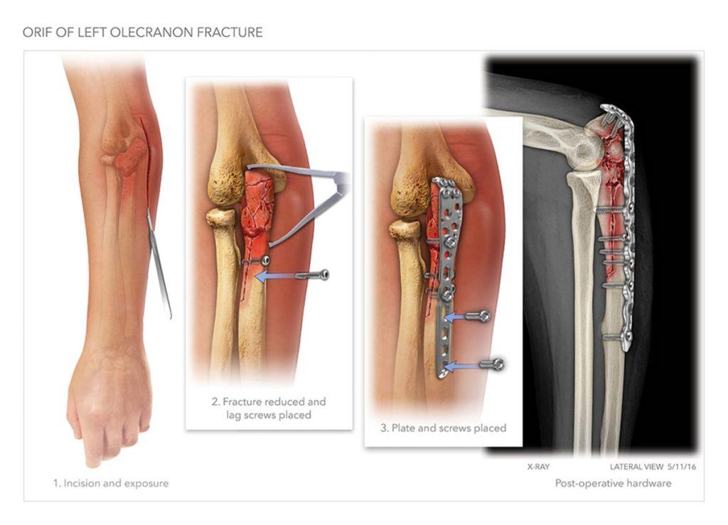 جا اندازی باز با تثبیت داخلی شکستگی آرنج