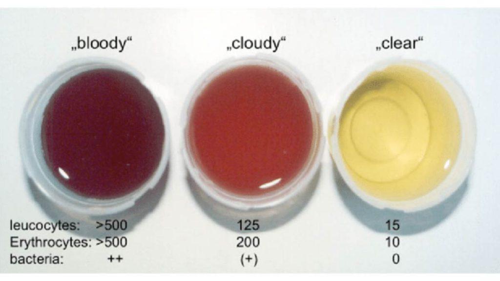 تشخیص وجود خون در ادرار
