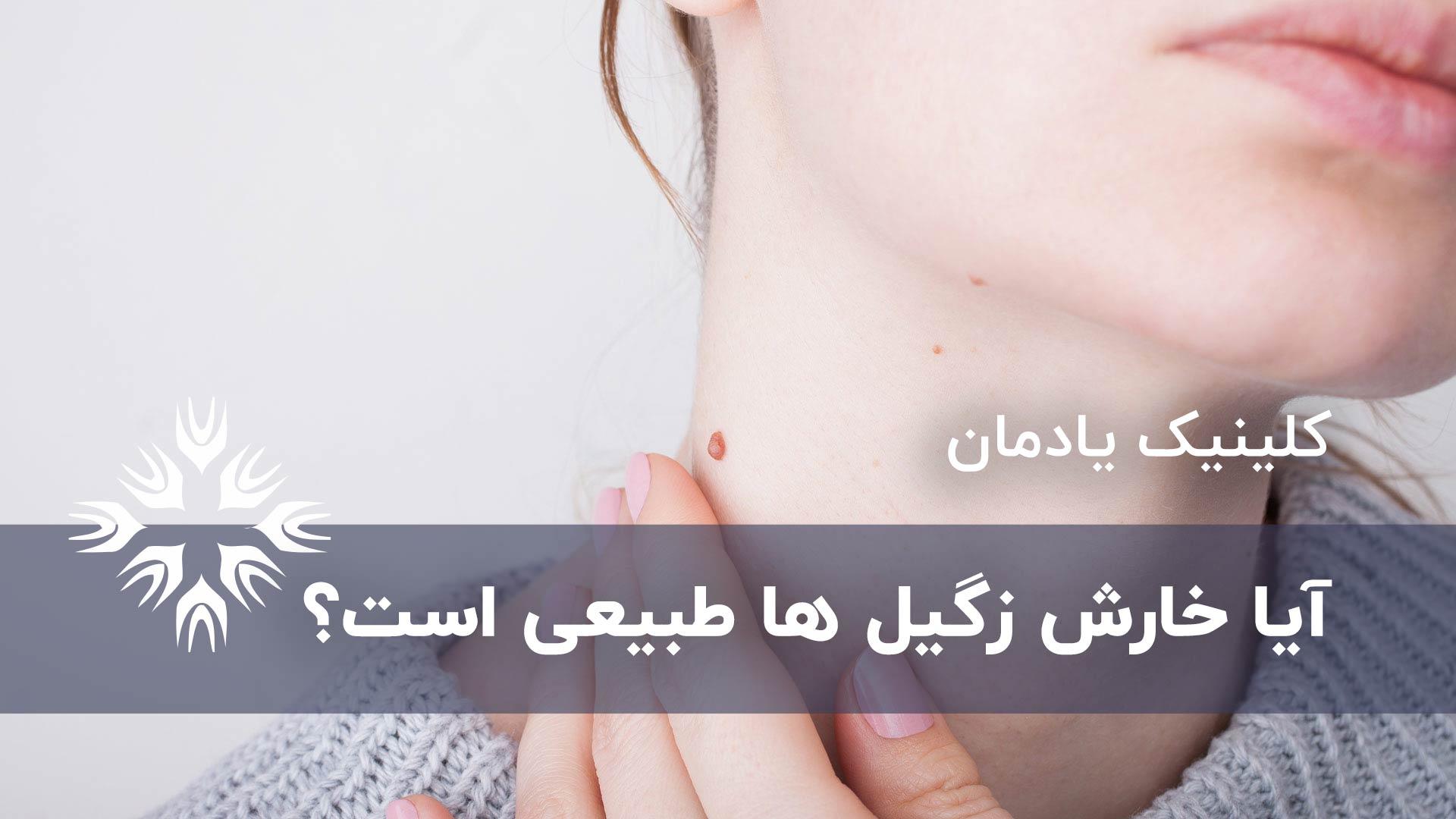 خارش و درمان زگیل های معمولی