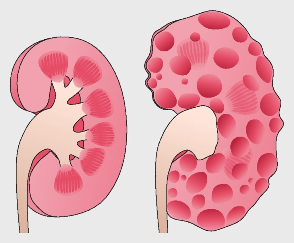 بیماری کلیه پلی کیستیک